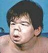 gammaglobulinmangel im blut